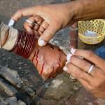 City Secret - Blood Letting, Rahat Open Surgery